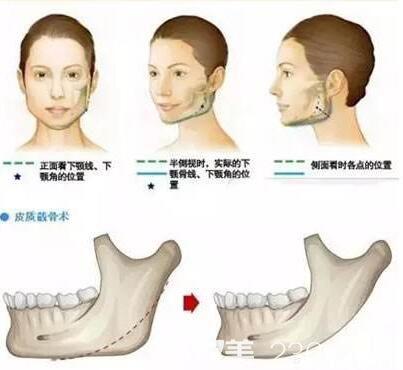 下颌角整形的手术方式