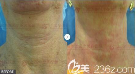 上海华美医疗美容医院 4D极塑提拉真人案例