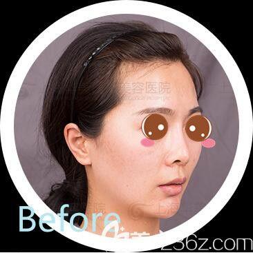 上海华美ARC™金标准脂肪塑性+肋软骨鼻综合真人案例术前照
