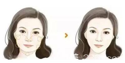 下颌角整形术前术后对比效果
