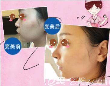 上海伯思立医疗美容门诊部肋软骨隆鼻真人案例
