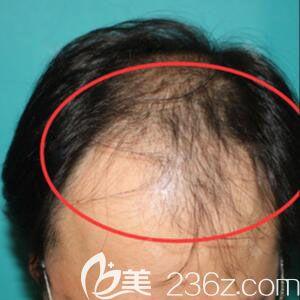 韩国毛杰琳整形医院黄晶煜术前照片1