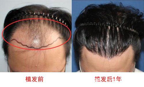 韩国毛杰琳植发术前与术后效果对比图