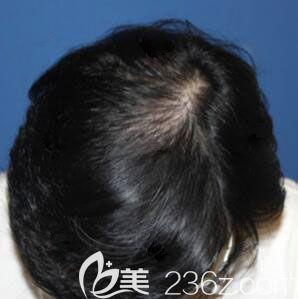 韩国毛杰琳整形医院黄晶煜术后照片1