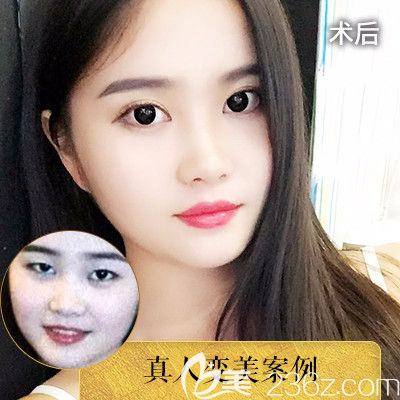 深圳润泽瑞尼丝陈敬武医生双眼皮案例