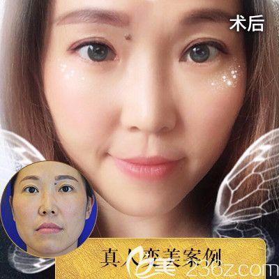 深圳润泽瑞尼丝于甫面部线雕提升案例