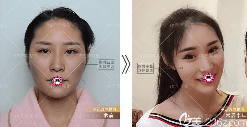北京艺美不开刀降颧骨案例
