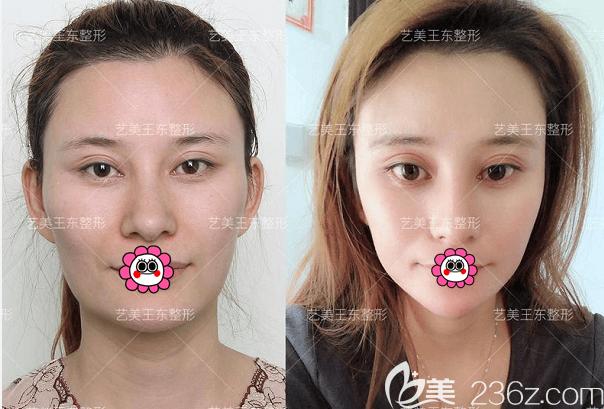 北京艺美王东不开刀去下颌角案例