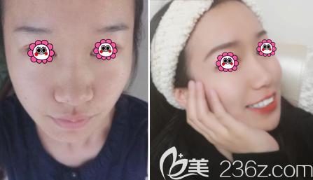 北京艺美范宪红医生全脸自体脂肪填充案例