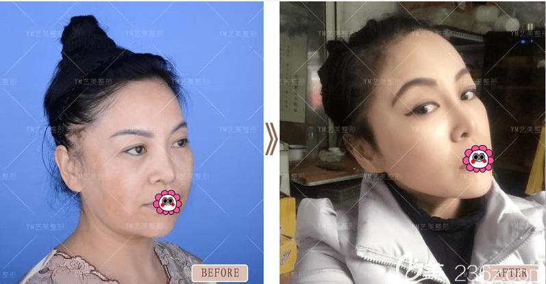 北京艺美脂肪抗衰案例效果