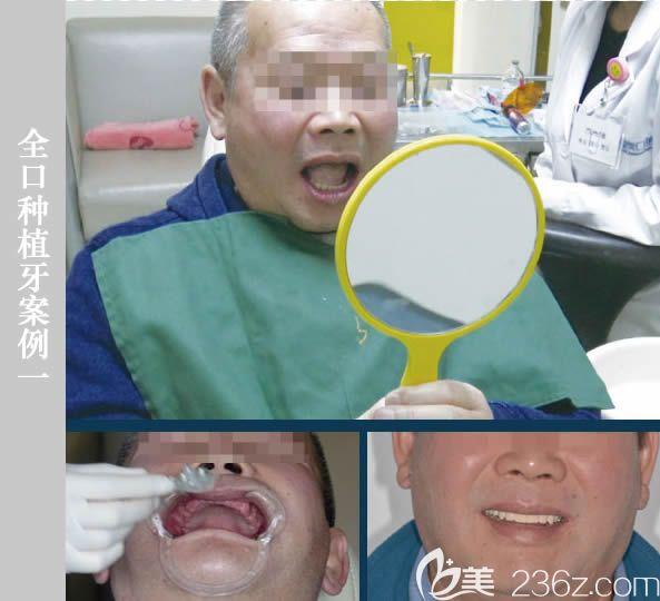 北京维乐口腔医院全口种植牙案例效果
