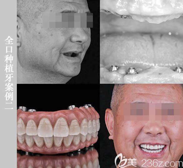 64岁陈先生在维乐做完全口即刻种植牙的对比效果