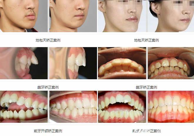 北京维乐地包天矫正和成人龅牙矫正等正畸案例效果图