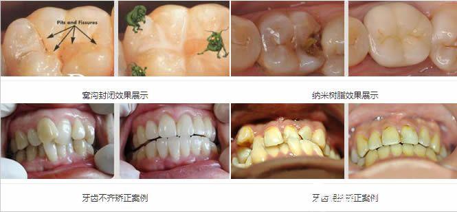 维乐口腔儿童牙齿矫正及树脂补牙前后对比照