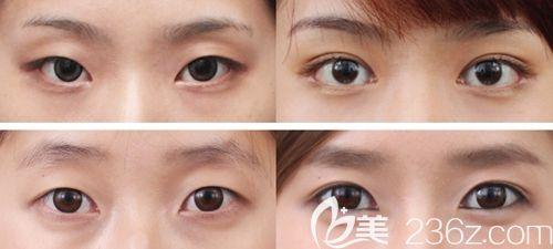 韩国原辰眼部整形案例