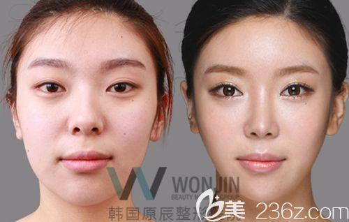 韩国原辰隆鼻手术案例