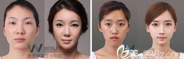 韩国原辰面部轮廓手术案例