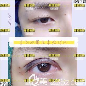 上海丽质医疗美容医院全切双眼皮真人案例
