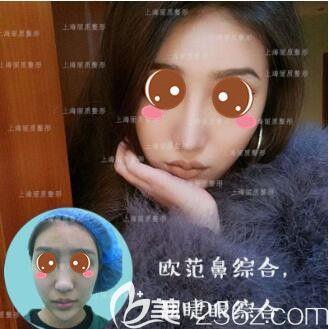 上海丽质医疗美容医院鼻综合真人案例