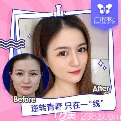 广州韩妃陈坦医生做的线雕提升对比图