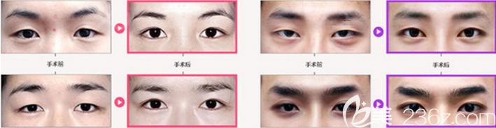 韩国原辰女生和男生割双眼皮效果图对比