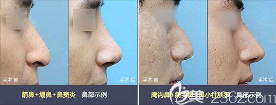 韩国原辰鼻综合隆鼻案例
