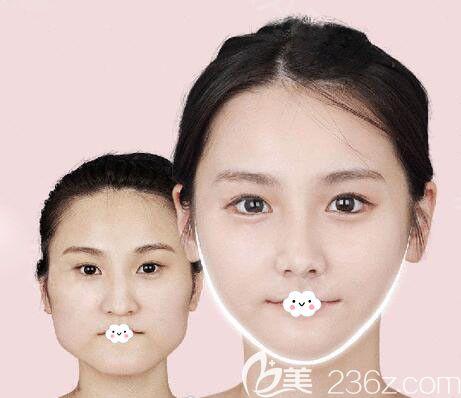 韩国原辰面部轮廓整形真人案例