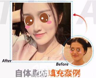 上海天大医疗美容医院自体脂肪面部填充真人案例