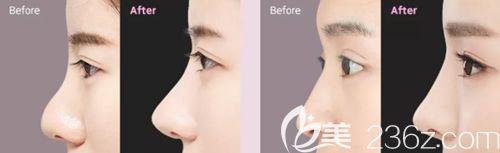 韩国原辰鼻综合手术案例