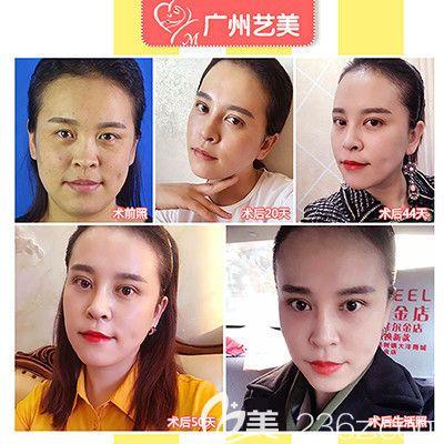 广州艺美张涛医生做的面部线雕提升案例