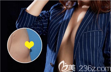 深圳春天医院隆胸案例