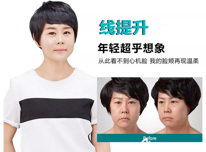 韩国原辰整形外科医院线雕真人案例