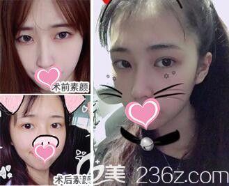 上海仁爱医院整形美容科眼综合真人案例