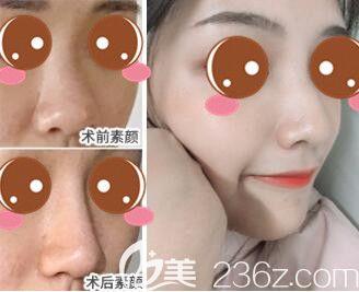 上海仁爱医院整形美容科鼻综合真人案例