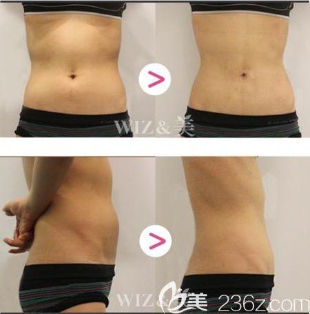 韩国WIZ美迷你吸脂针注射腰腹案例
