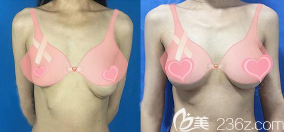 陈育哲隆胸失败修复案例(奥美定取出+假体植入)