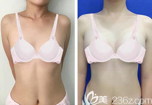 哈尔滨雅美王刚假体隆胸案例