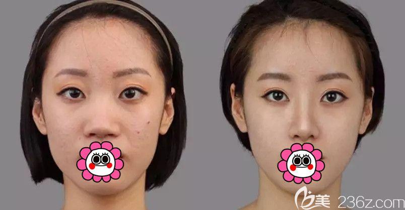哈尔滨超龙隆鼻效果对比