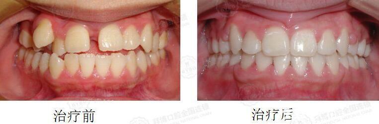 拜博口腔小妹妹牙齿拥挤不齐,双颌前突矫正案例前后对比