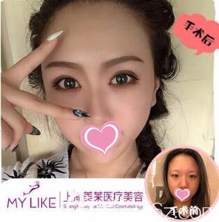 上海美莱医疗美容医院急速纳米眼综合真人案例