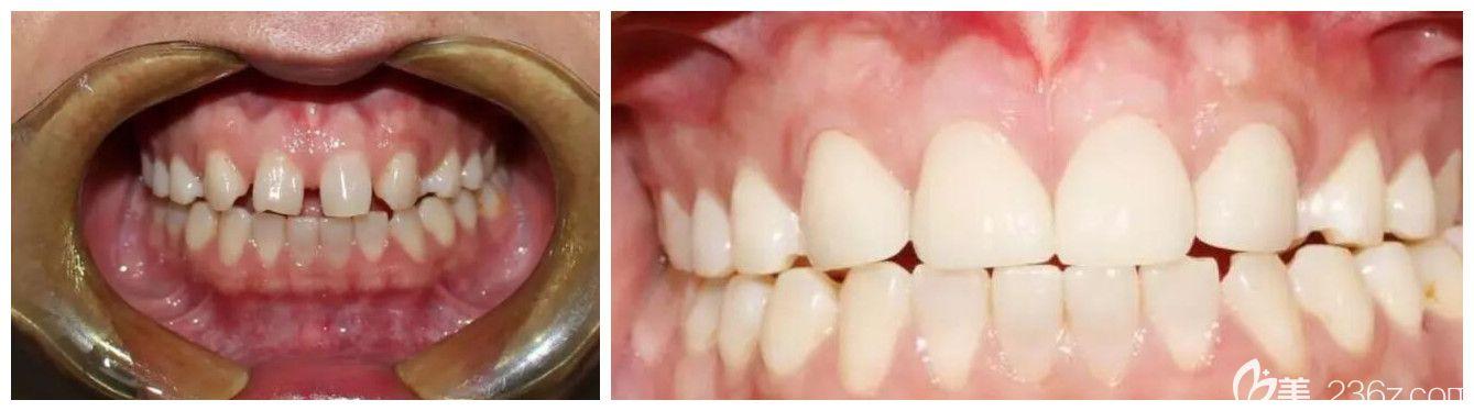 北京爵冠口腔牙贴面修复门牙缝隙案例前后对比图