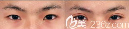 成都八大处陈江庭双眼皮修复案例效果图