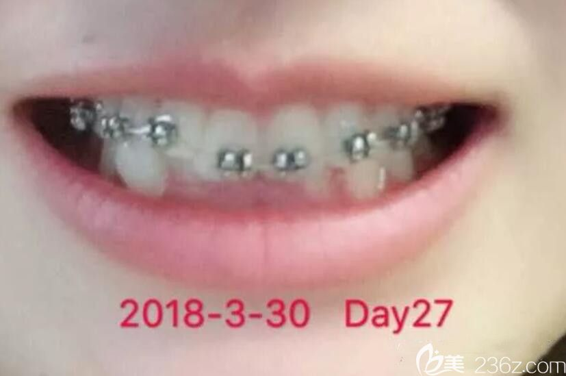 深覆合+牙齿不齐已经在北京爵冠口腔矫正4个月啦,上牙套前平导就戴了两个月