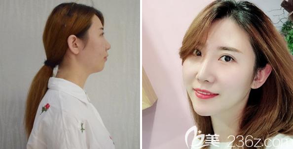 东莞韩美王仁斌医生做的隆鼻和丰下巴手术案例