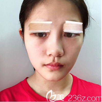 双眼皮眼综合术后两天效果图
