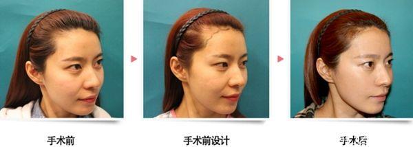 在韩国毛杰琳做了发际线移植后3个月