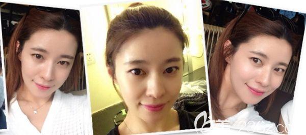 在韩国毛杰琳做了发际线移植9个月后不仅改善了我宽额头脸也显小了