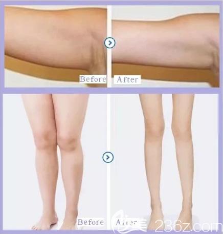 上臂吸脂和腿部吸脂效果