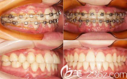 地包天矫正一年没效果,后转诊南宁洋紫荆口腔才解除我的牙齿反颌