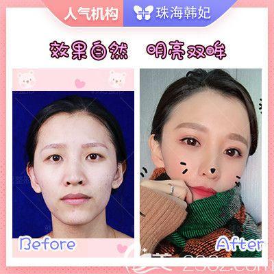 珠海韩妃双眼皮脂肪填充案例
